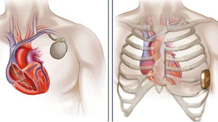 """新技术为""""心""""护航,患者终于不用担心晕厥和心脏性猝死了!"""