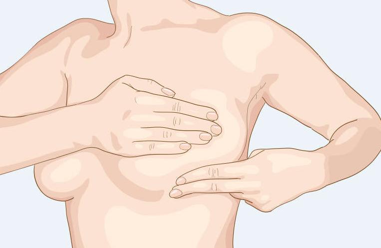 乳腺结节是早期乳腺癌吗?乳腺科医生:乳腺癌最喜欢这9类女性!