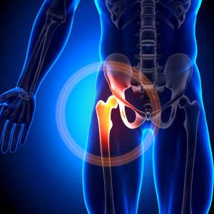 股骨头坏死会导致瘫痪吗?专家:股骨头坏死越早治疗效果越好!
