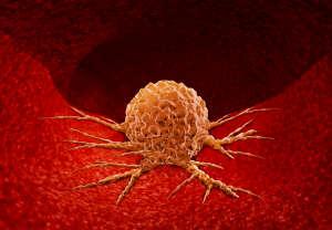 """癌细胞并不""""老实"""",常通过4条路悄悄转移,别太放心了"""