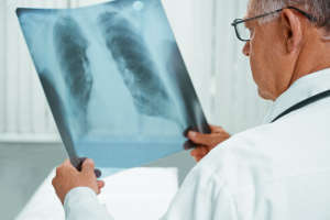 要想了解肺部健康,可从身体4个地方去观察