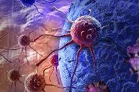 体内有癌,身体往往会有这四个症状,可对照自查
