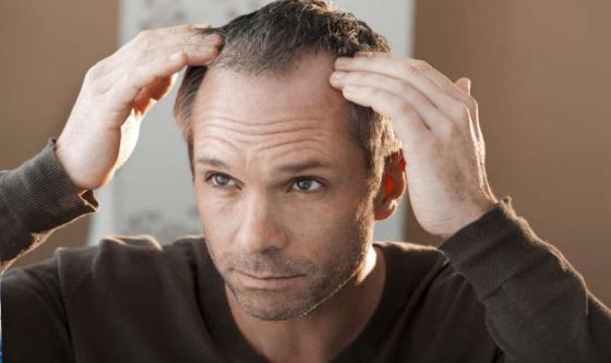 头发一天比一天少?男性拒绝脱发,得做好这几点