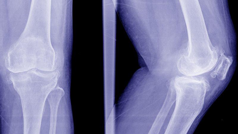 骨刺怎么治疗?如何有效地缓解痛苦?提醒:日常需要注意3点