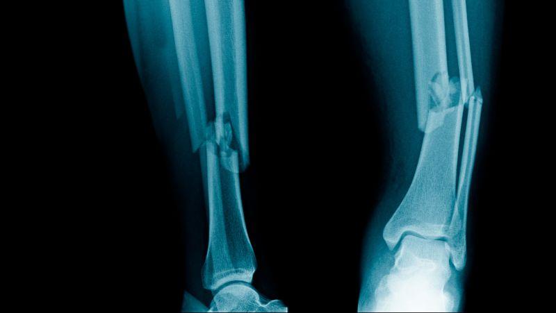 怎么判断手臂是否骨折