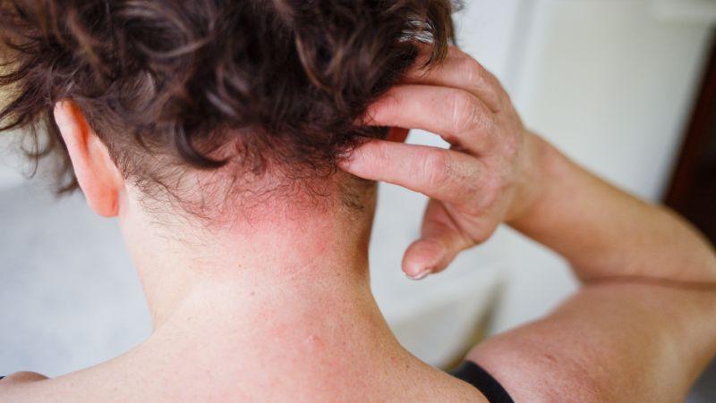 注意,皮肤出现这4个症状要警惕,当心是皮肤癌找上你