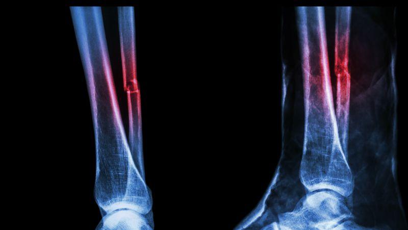 骶5椎体骨折是否严重