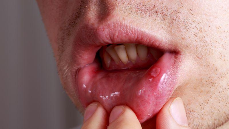 """嘴唇长水疱是""""上火""""了吗?会不会传染给孩子?"""