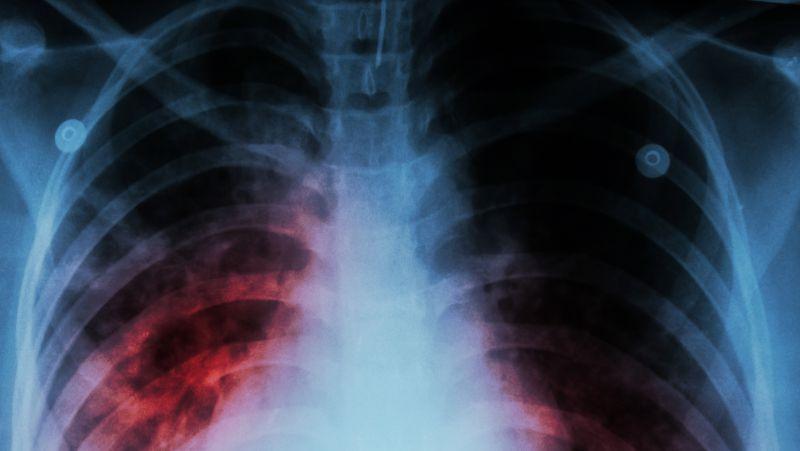 吸烟后的肺会变成什么样