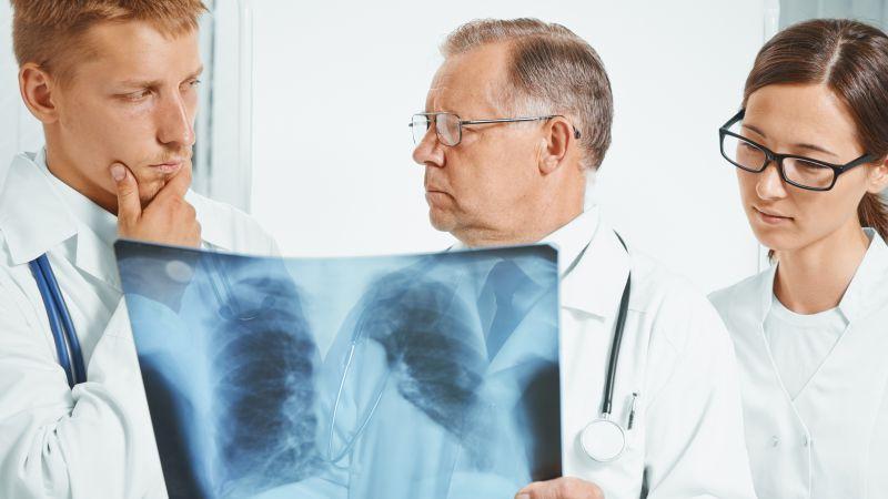 """肺癌""""偏爱""""这4类人,若你符合,需注意加强养护肺脏,定期检查"""