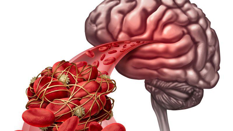 脑血栓食谱