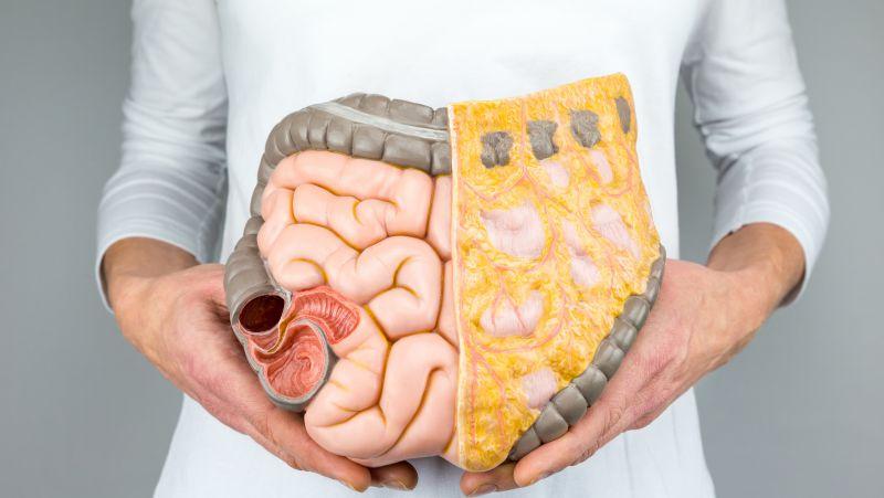结肠癌的饮食
