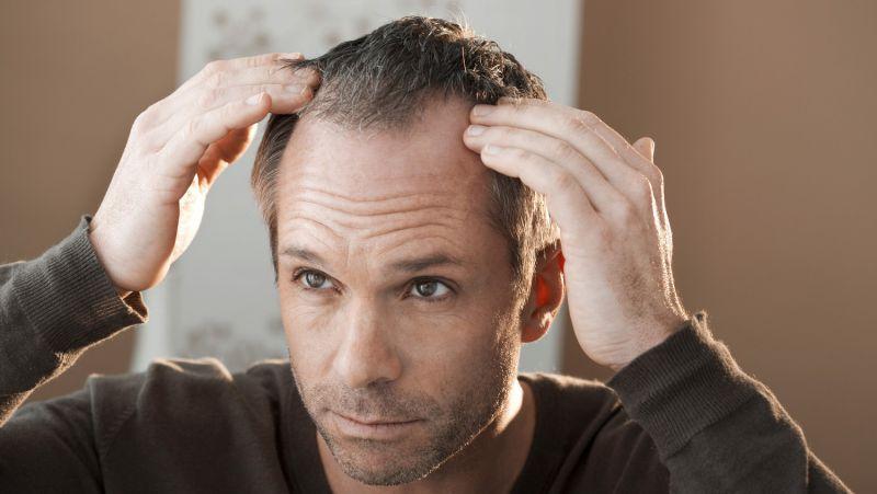"""男人脱发和肾虚有关?这3个原因才是真相!别再让肾""""背锅""""了!"""
