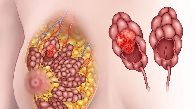 乳腺癌的诊断