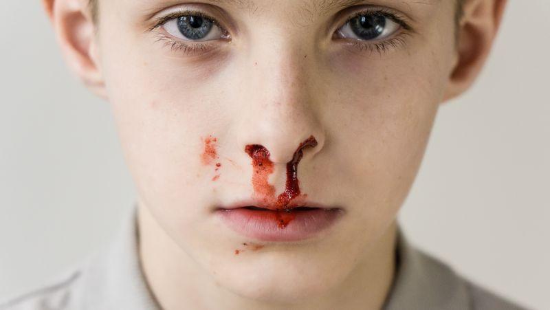 同一个鼻孔为什么经常流鼻血