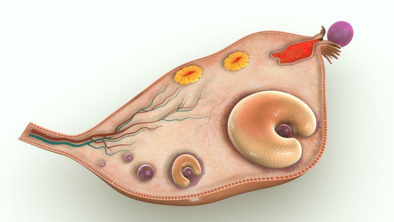 卵巢癌的治疗