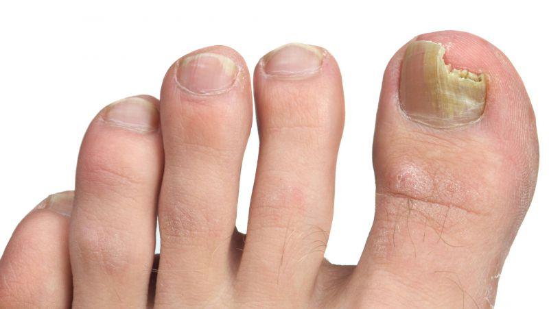 灰指甲不治会怎么样