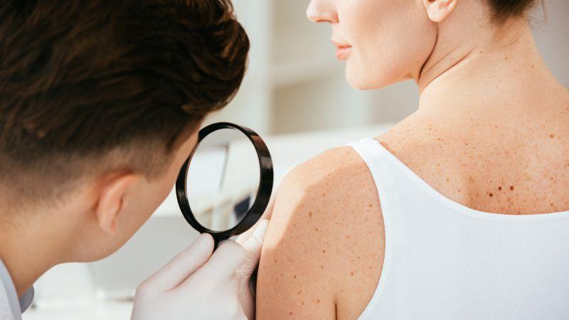 皮肤病会容易传染吗