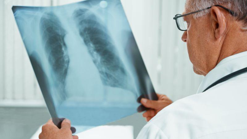 肺气虚的保健护理