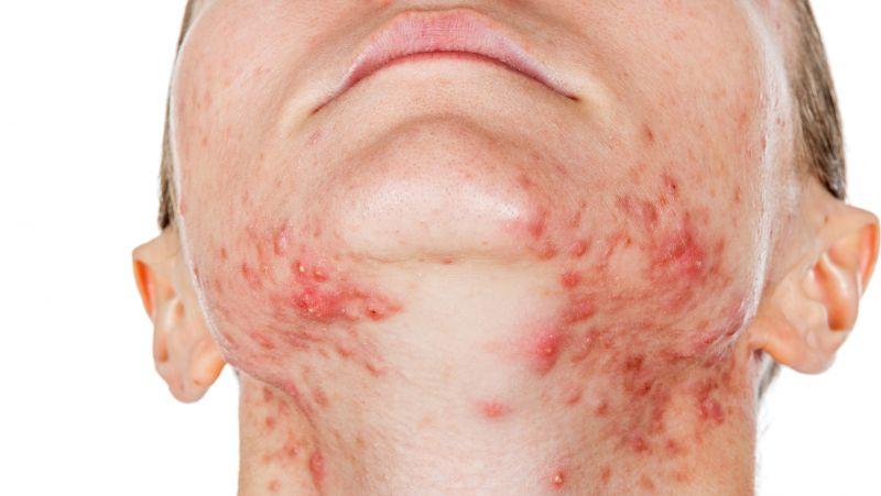 皮肤病的治疗