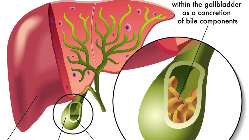 胆汁反流性胃炎的症状
