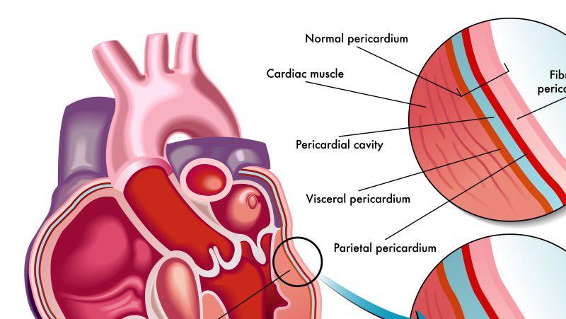怎么预防心脏猝死
