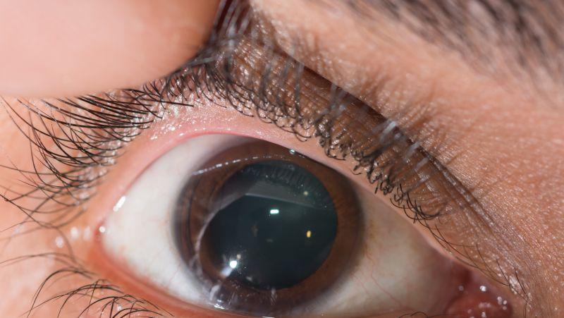 美瞳怎么戴对眼睛的危害小
