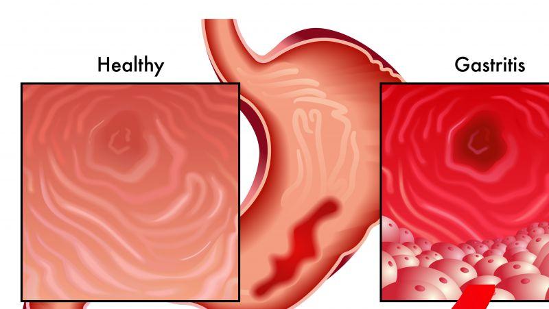胆汁反流性胃炎的表现