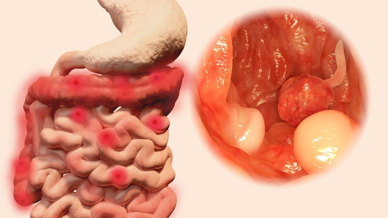 肿瘤性息肉的诊断