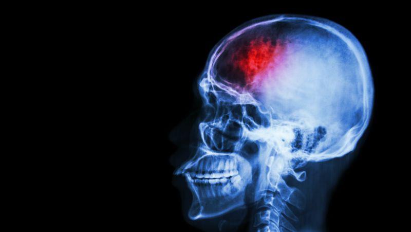 大脑供血不足的人,生活中多吃这4种食物,软化血管健康能常伴你