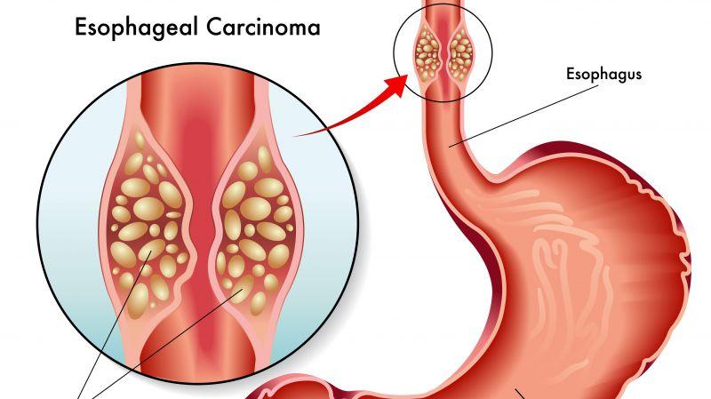 不想食管癌找上门?忠告:少喝1水少吃2物,食管才会更好