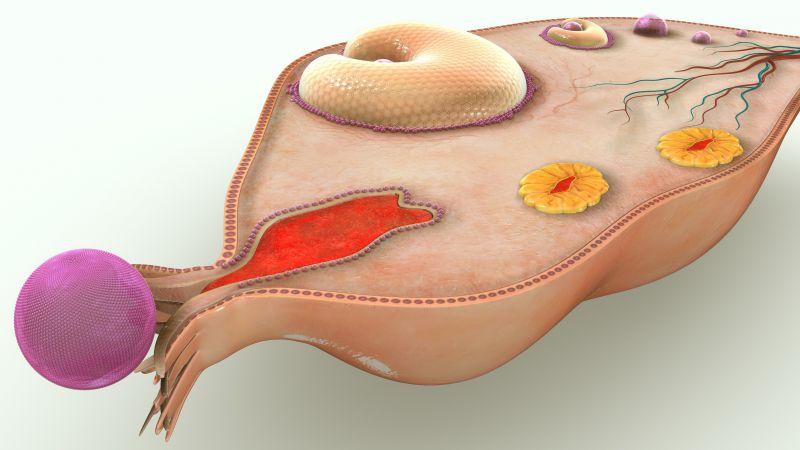 卵巢癌一发现就是晚期,如何预防?有5项异常,需早检查