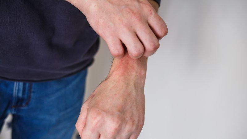 湿疹的病因