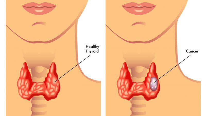 全段甲状旁腺激素高原因