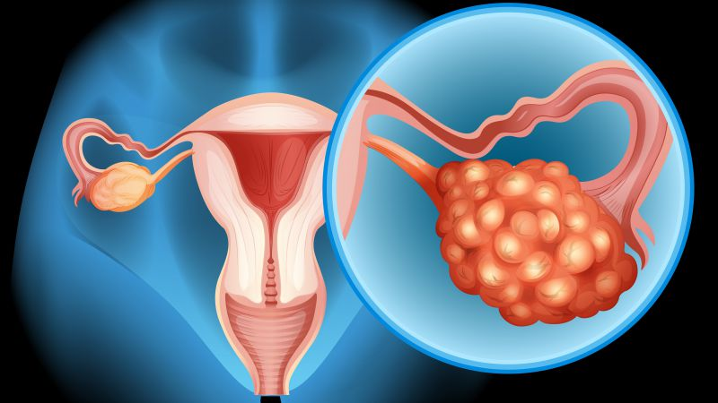 多囊性卵巢综合症症状有哪些