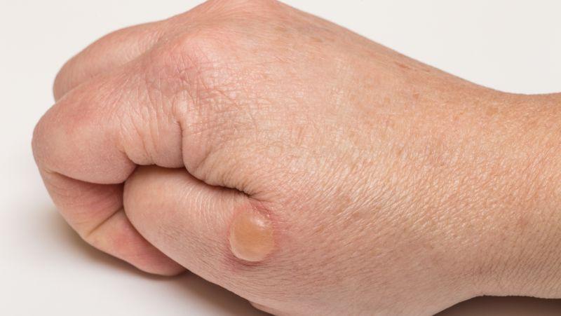 大疱性表皮松解症可出现症状表现