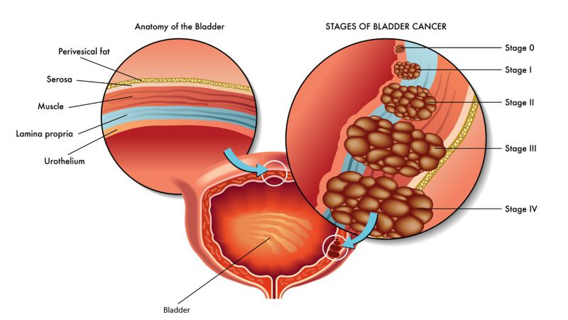 """肿瘤患者进补,4个误区要避开,吃得科学,才能与癌症""""抗衡"""""""