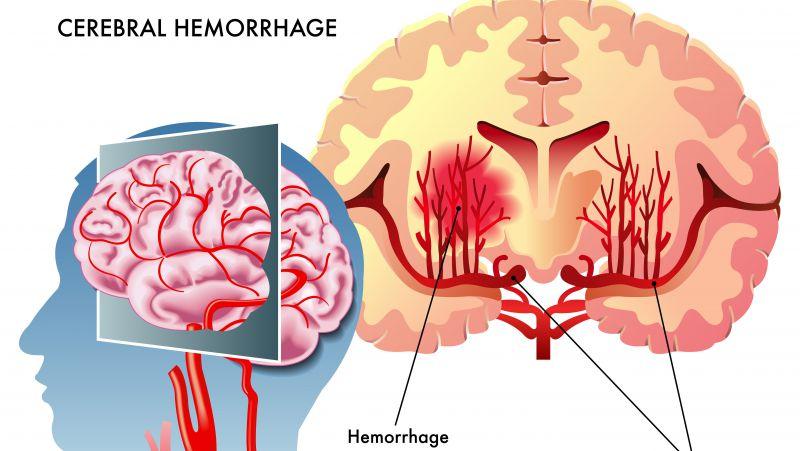 什么是脑出血,怎样做才能远离脑出血?