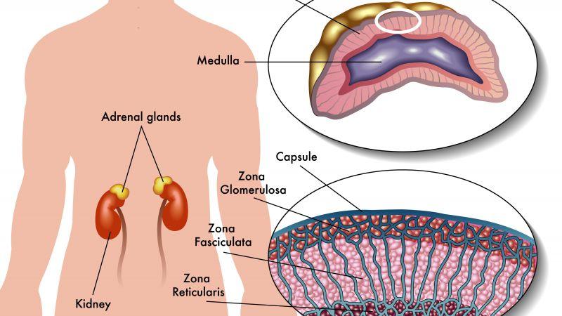尿毒症病因
