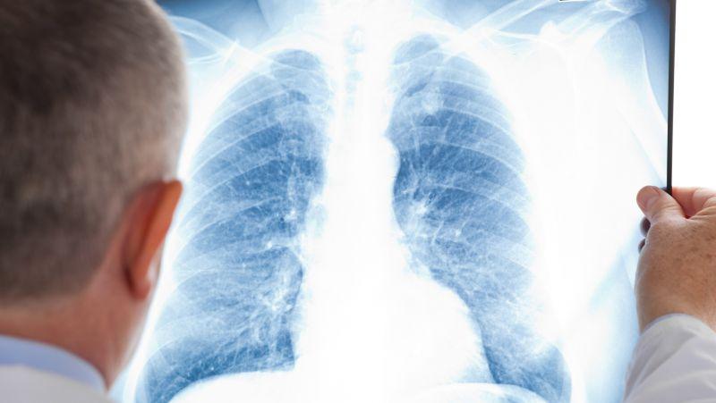 肺炎球菌肺炎的护理