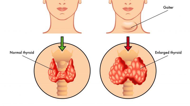 甲状腺结节患者饮食应注意什么