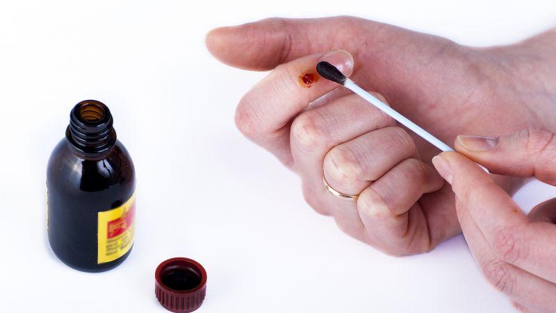 烫伤后涂牙膏、抹酱油真的靠谱?提醒:这样处理才正确