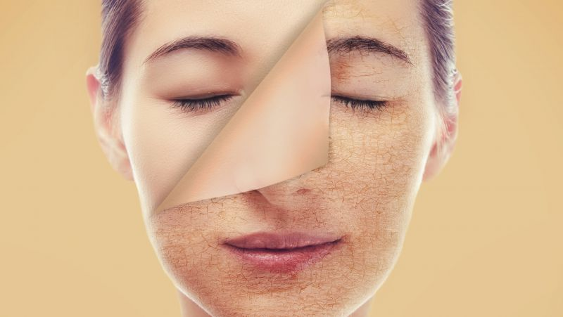 什么是光子嫩肤 光子嫩肤有哪些作用?