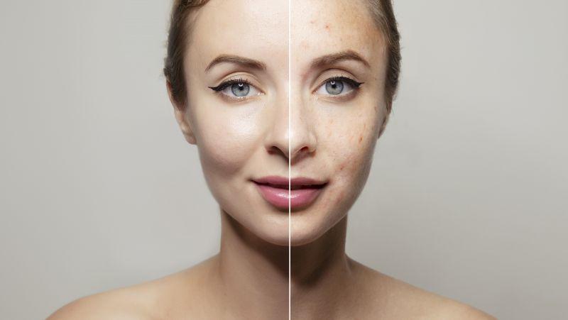 女性气血虚提前进入衰老,身体若有这4个症状,你该补气血了