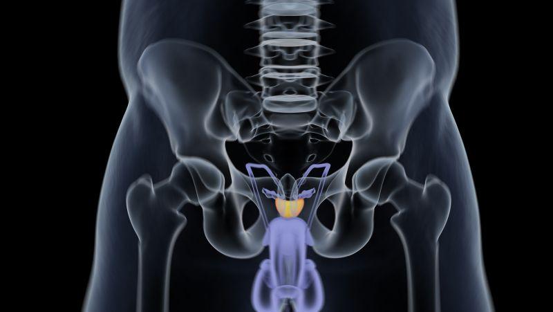 损害前列腺健康的6个坏习惯