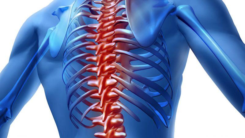 强直性脊柱炎影像表现