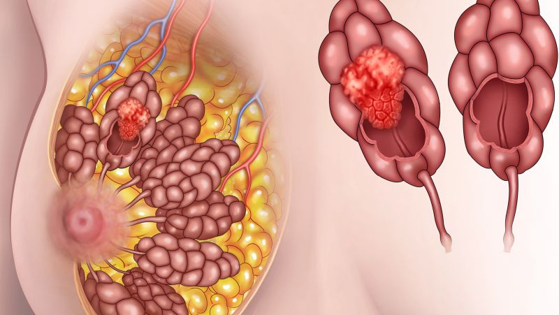 """乳腺癌是女性健康的一大""""杀手""""?出现这5种异常,需赶紧做筛查"""