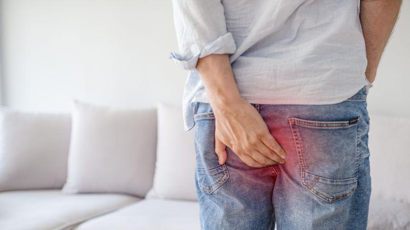 痔疮与肛门息肉和肛瘘有什么区别?
