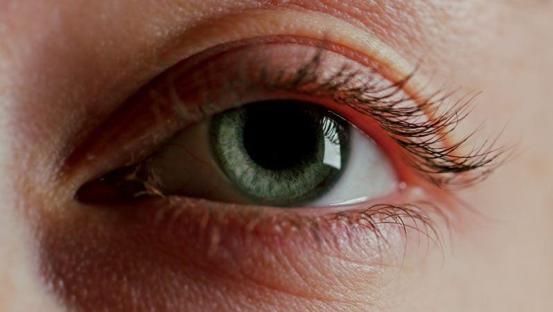 眼睛为什么会得白内障
