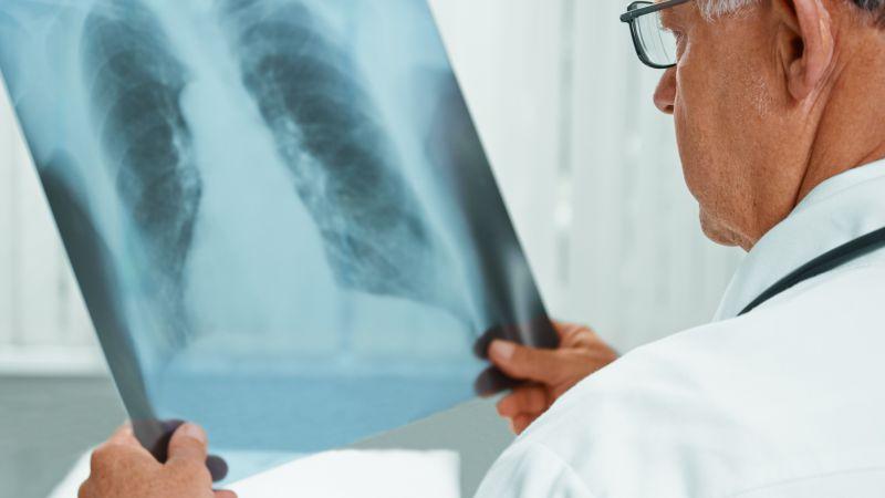 肺大泡危险吗